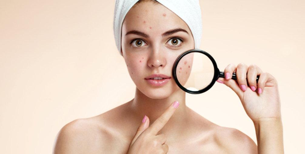 combate el acne con cosmetica natural