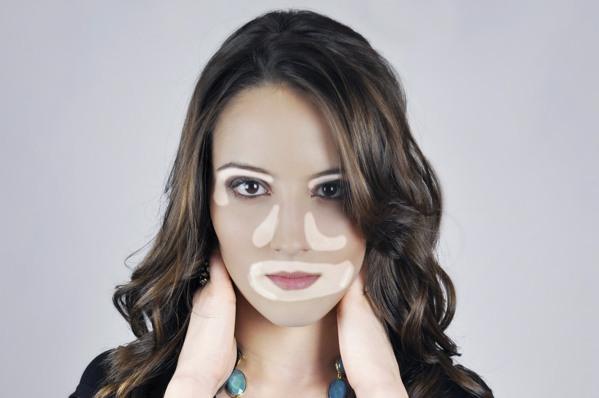 modelo-vitiligo
