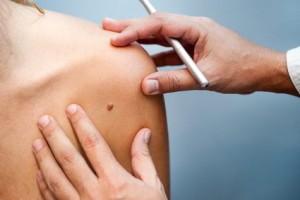 tratamientos manchas de la piel