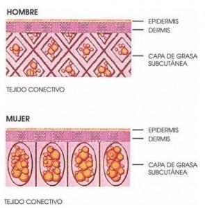 diferencias hombres mujeres celulitis