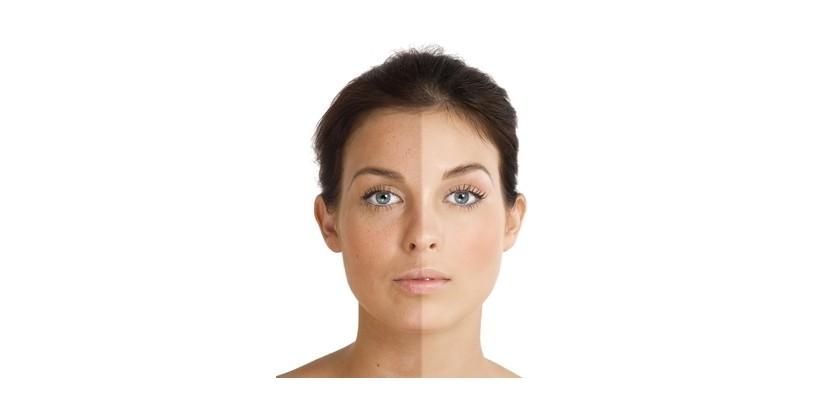 tratamientos-manchas-piel